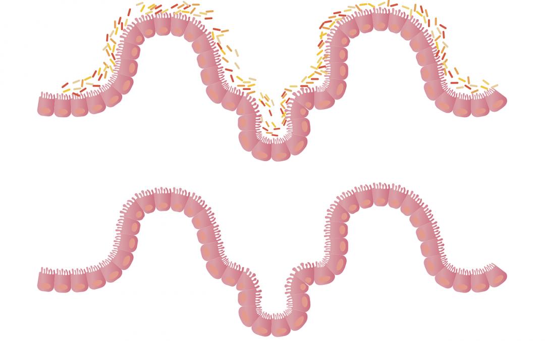 Mikrobiota i jej wpływ na zachcianki na słodkie lub słone